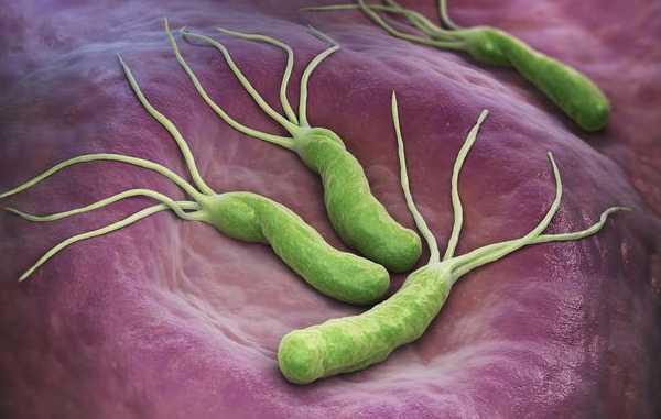 胃中幽门螺杆菌可以不治吗?医生:因人而异!