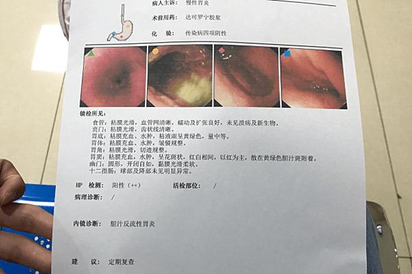 感染HP幽门螺杆菌阴性+,食物疗法效果好,不伤胃更安全!