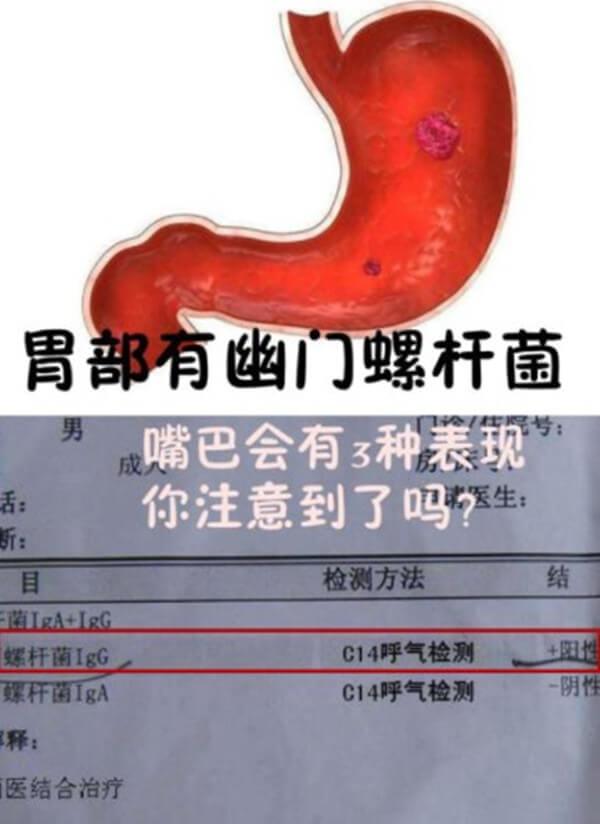 幽门螺旋杆菌舌头图片,最简单的舌相辨别方法