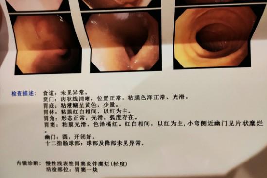幽门螺杆菌怎么得的?本人幽门杆菌感染伴胃炎!