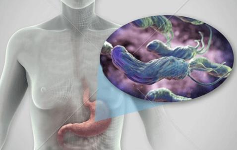 幽门螺杆菌呈弱阳性