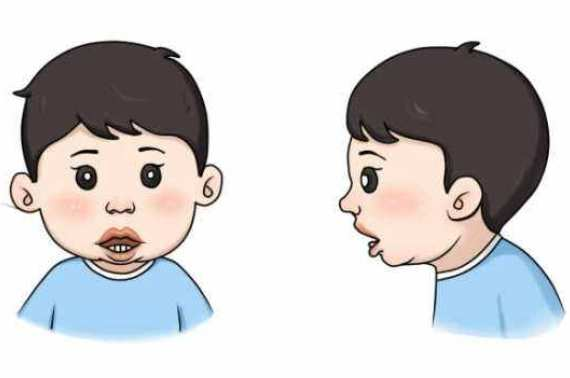 腺样体面容的牙齿图片