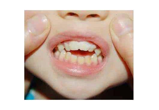 13岁腺样体肥大牙齿矫正