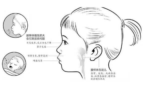 4岁娃腺样体大面容照片