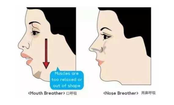 腺样体肥大脸部变化图