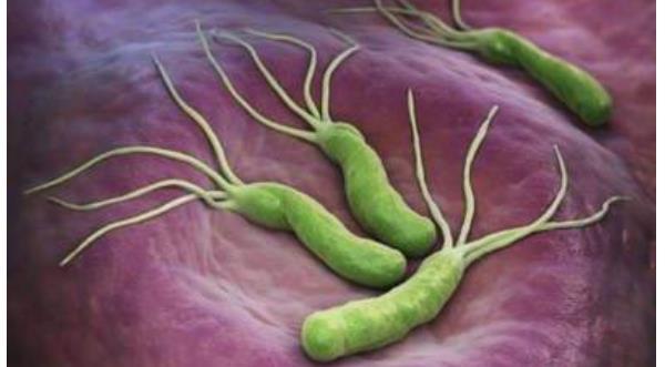 如何预防幽门螺杆菌