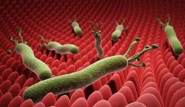 幽门螺杆菌抗体阳性严重吗