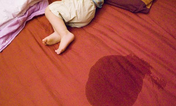 六个治疗小孩尿床的偏方