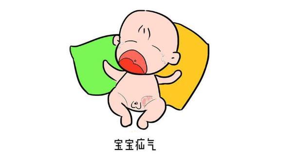 新生儿鞘膜积液和疝气的区别