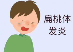 扁桃体发炎2分钟消炎的方法,你还不知道吗?