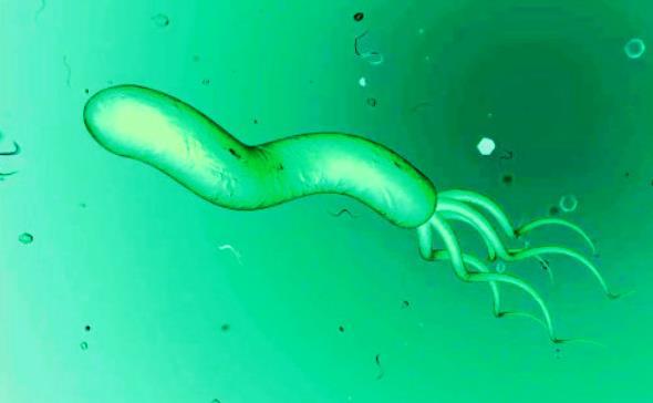 幽门螺杆菌感染有症状吗?专家:有些人无任何症状