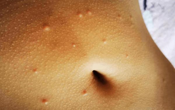 肤儿宝软疣水,肤儿宝祛除儿童传染性软疣效果怎么样?