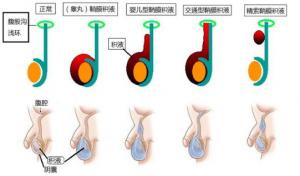 关于鞘膜积液开刀与微创的选择! 泌尿系健康栏目